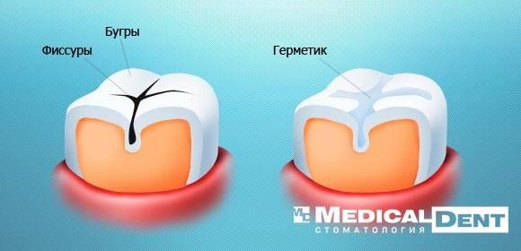 Герметизация фиссур в Минске