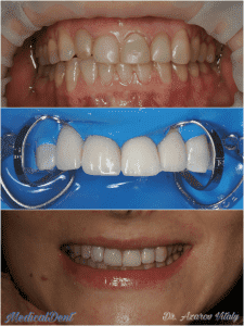 Восстановление эстетики улыбки цельнокерамическими винирами e.max.