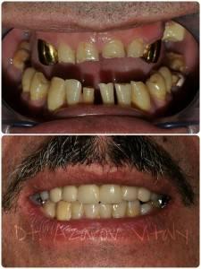 Восстановление патологической стираемости зубов и нормализация обратного перекрытия резцов. Металлокерамические коронки и комбинированный бюгельный протез из КХС и нейлона