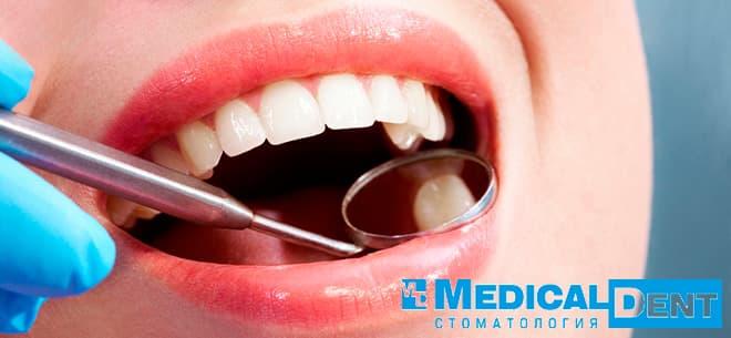 скайсы на зуб в минске