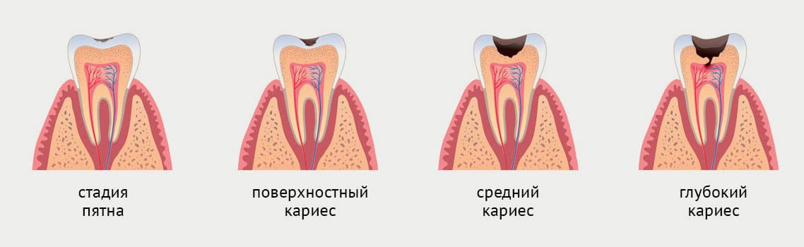 стадии кариеса