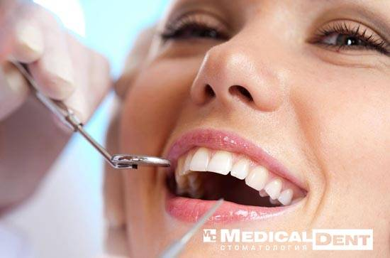 Профилактическая стоматология в Минске