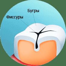 ГЕРМЕТИЗАЦИЯ ФИССУР ИЛИ ЗАПЕЧАТЫВАНИЕ ФИССУР
