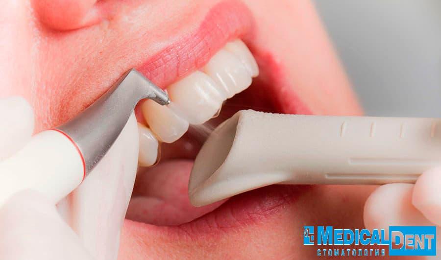 чистка зубов air flow