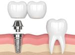 несъемное протезирование зубной мост
